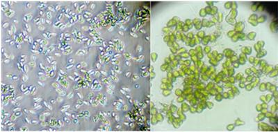 Foto al microscopio ottico di tre microalghe